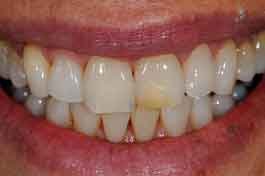 Old bonding makes tooth look yellow and aged